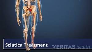sciatic nerve pain treatment